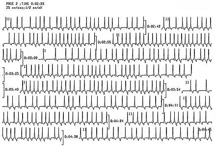 Holter Monitor Test | 24 Hour Heart Monitor | Ambulatory ECG